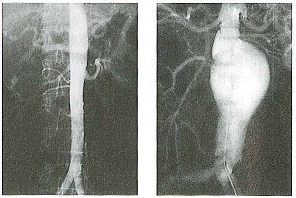 An arteriogram of a healthy aorta (left) compared to an aortic aneurysm.